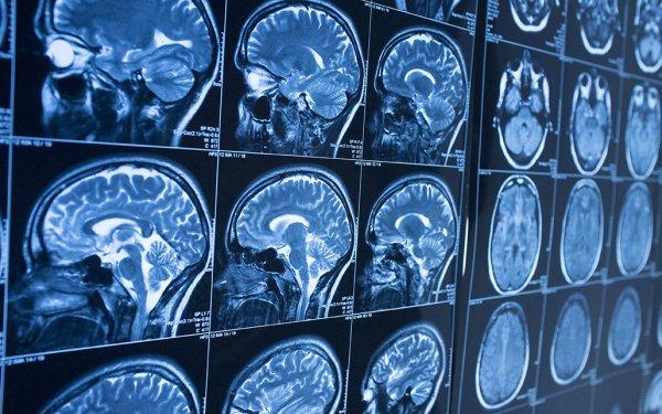 mri brain scans